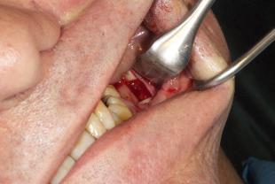 Prelievo di osso autologo dalla mandibola