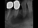 Guarigione di estesa lesione endodontica